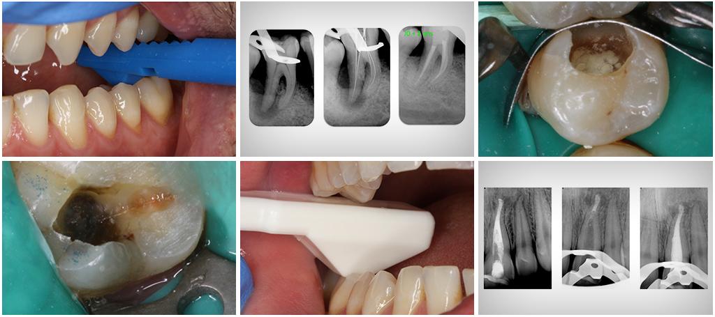 Photo clinique : L'endodontie pratique