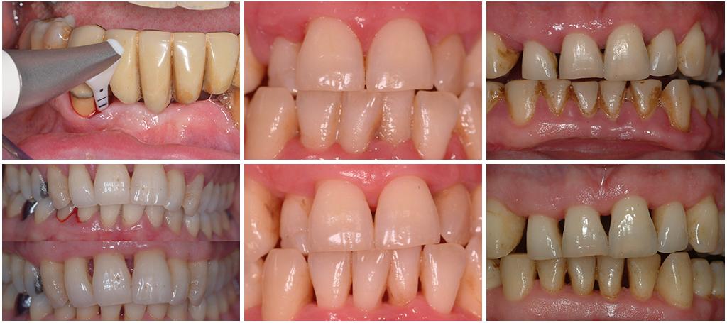 Photos cliniques : Parodontologie non chirurgicale au cabinet